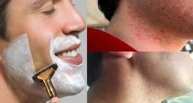 Beneficios de usar un bálsamo para después del afeitado